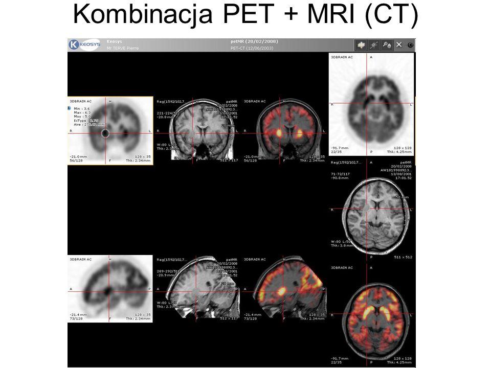 Kombinacja PET + MRI (CT)