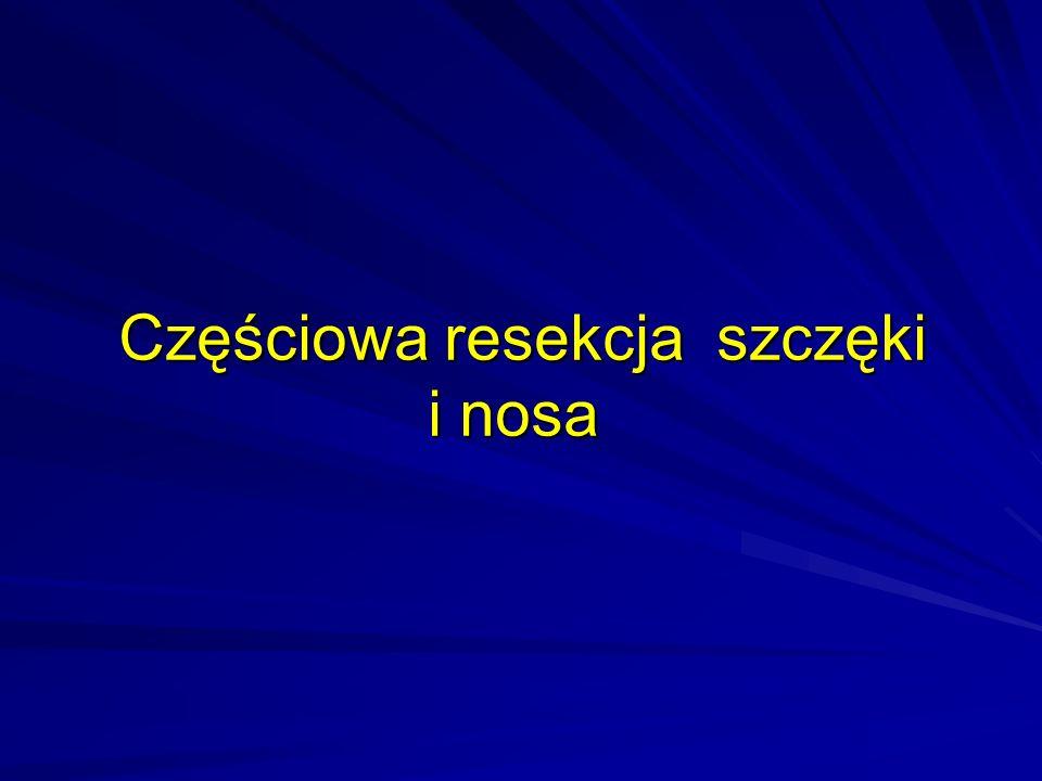 Częściowa resekcja szczęki i nosa Częściowa resekcja szczęki i nosa