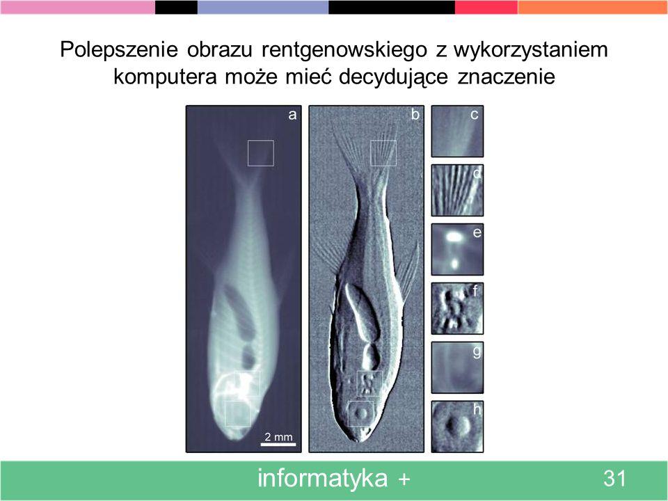Poniżej przedstawiono dwukrotnie ten sam obiekt anatomiczny (rękę kobiety z obrączką) – uzyskany metodami fizycznymi (po lewej) i udoskonalony kompute