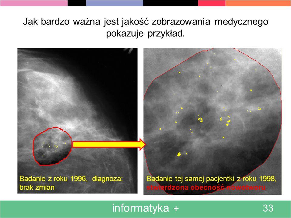 Jeszcze jeden przykład z tej samej serii: obrazy mammograficzne w postaci oryginalnej oraz komputerowo poprawionej. informatyka + 32