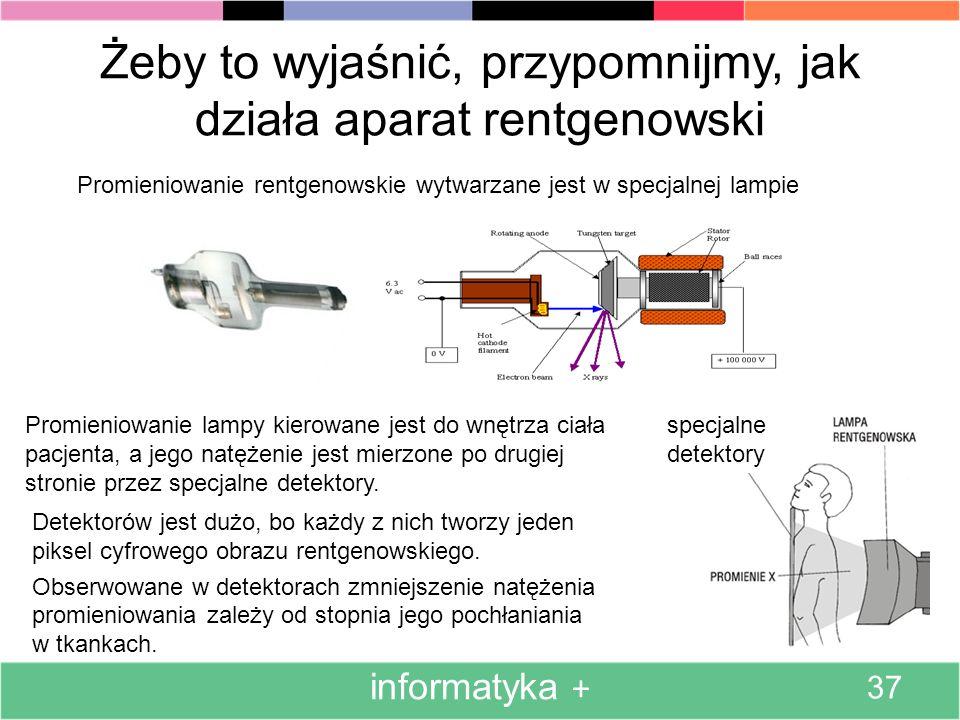 Angażowanie komputerów także do automatycznej interpretacji obrazów medycznych, a nie tylko ich ulepszonej prezentacji (ulepszonej w stosunku do orygi