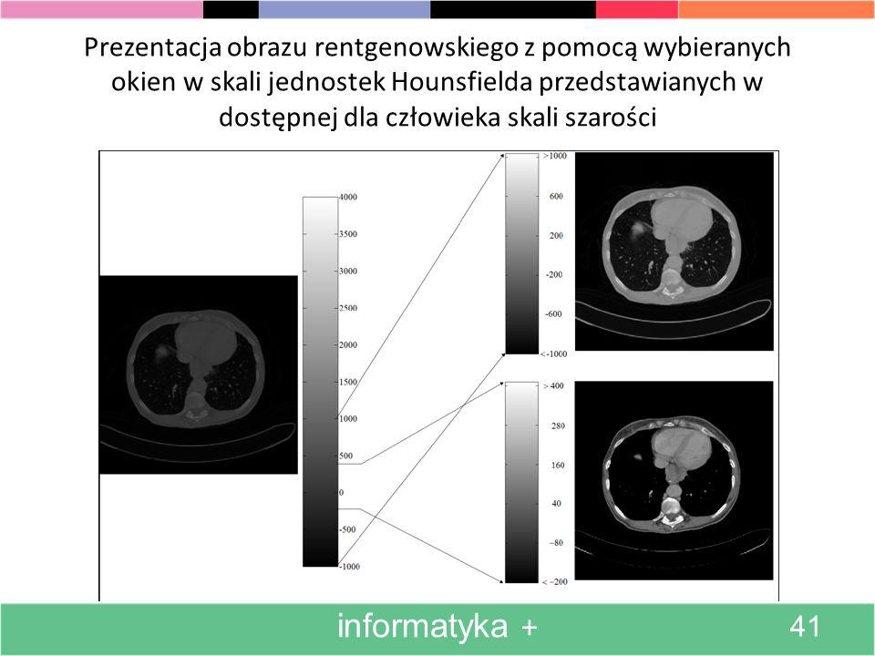 Doskonałość współczesnej techniki rentgenowskiej jest jednocześnie źródłem problemu: na zdjęciu rentgenowskim możliwe jest wyróżnienie 5000 różnych po