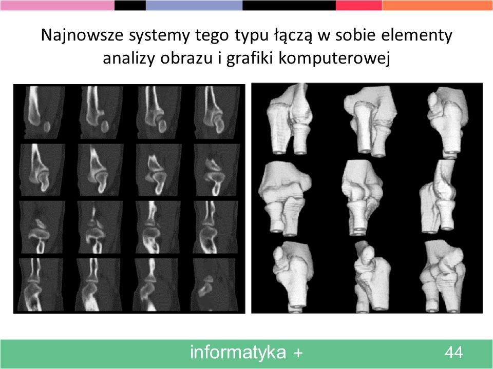 Komputery mogą się posunąć znacznie dalej w doskonaleniu obrazów medycznych. informatyka + 43