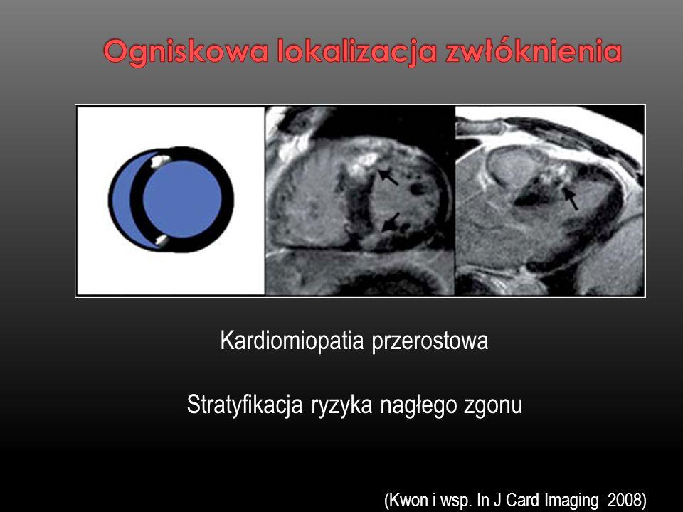 Kardiomiopatia przerostowa Stratyfikacja ryzyka nagłego zgonu (Kwon i wsp. In J Card Imaging 2008)