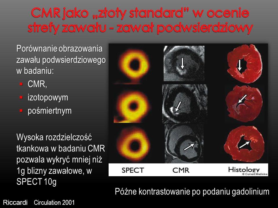 Porównanie obrazowania zawału podwsierdziowego w badaniu: CMR, CMR, izotopowym izotopowym pośmiertnym pośmiertnym Wysoka rozdzielczość tkankowa w bada