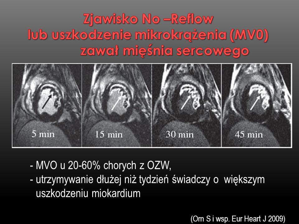 - MVO u 20-60% chorych z OZW, - utrzymywanie dłużej niż tydzień świadczy o większym uszkodzeniu miokardium (Orn S i wsp. Eur Heart J 2009)
