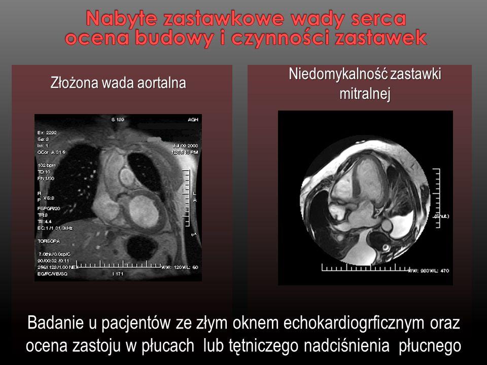 Niedomykalność zastawki mitralnej Złożona wada aortalna Badanie u pacjentów ze złym oknem echokardiogrficznym oraz ocena zastoju w płucach lub tętnicz
