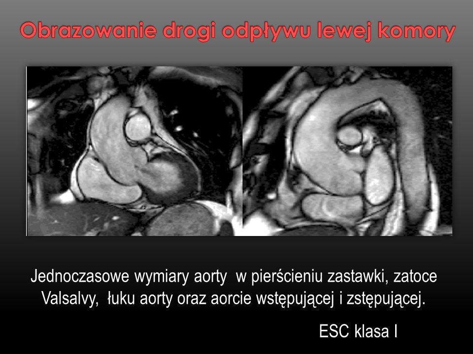 Jednoczasowe wymiary aorty w pierścieniu zastawki, zatoce Valsalvy, łuku aorty oraz aorcie wstępującej i zstępującej. Jednoczasowe wymiary aorty w pie