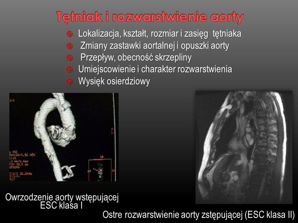 Lokalizacja, kształt, rozmiar i zasięg tętniaka Lokalizacja, kształt, rozmiar i zasięg tętniaka Zmiany zastawki aortalnej i opuszki aorty Zmiany zasta
