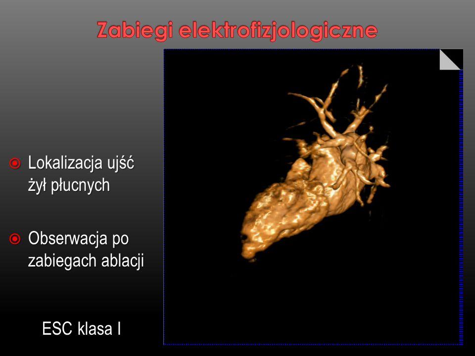 Lokalizacja ujść żył płucnych Lokalizacja ujść żył płucnych Obserwacja po zabiegach ablacji Obserwacja po zabiegach ablacji ESC klasa I