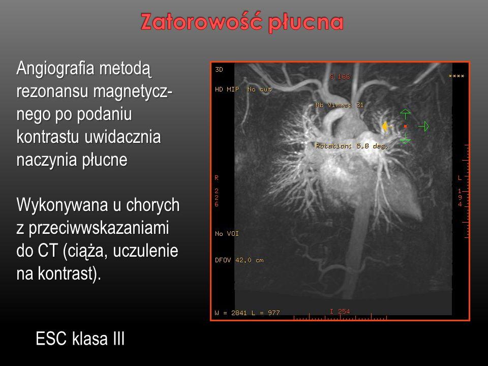 Angiografia metodą rezonansu magnetycz- nego po podaniu kontrastu uwidacznia naczynia płucne Wykonywana u chorych z przeciwwskazaniami do CT (ciąża, u