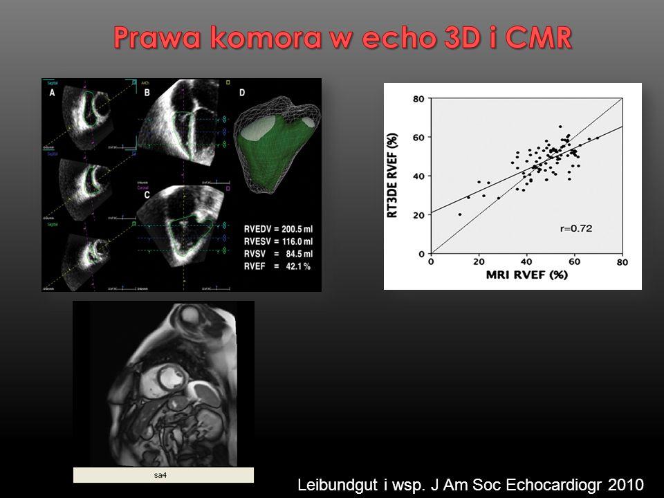 Leibundgut i wsp. J Am Soc Echocardiogr 2010