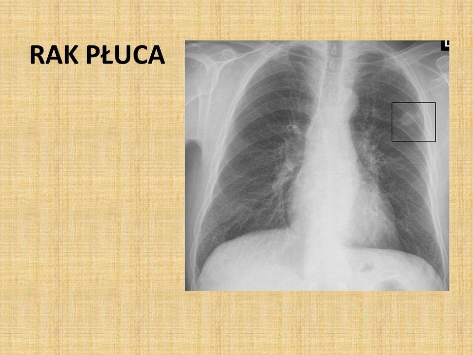 OBJAWY PRZEDMIOTOWE cechy nacieku, niedodmy lub płynu w jamie opłucnej (asymetria szmeru oddechowego, odgłosu opukowego) cechy naciekania mięśnia sercowego czy obecności płynu w worku osierdziowym (osłabienie tonów serca, arytmia) cechy przerzutów odległych( powiększenie węzłów chłonnych, powiększenie narządów miąższowych, objawy ze strony o.u.n., neuropatie obwodowe, bolesność uciskowa kości itd.)