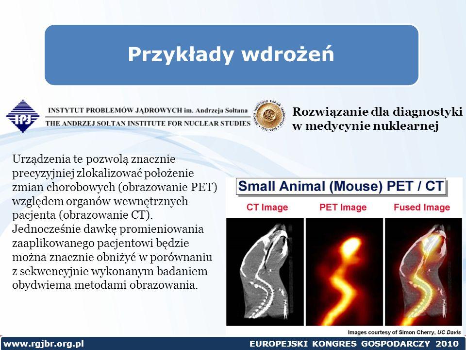 www.rgjbr.org.pl EUROPEJSKI KONGRES GOSPODARCZY 2010 Przykłady wdrożeń Rozwiązanie dla diagnostyki w medycynie nuklearnej Urządzenia te pozwolą znacznie precyzyjniej zlokalizować położenie zmian chorobowych (obrazowanie PET) względem organów wewnętrznych pacjenta (obrazowanie CT).
