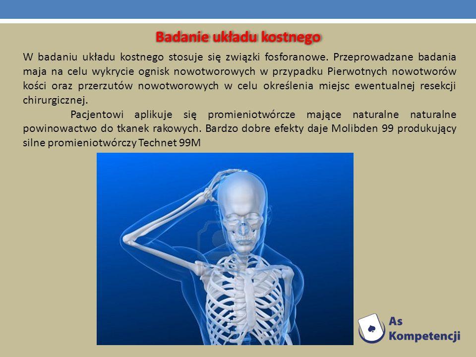 Badanie układu kostnego W badaniu układu kostnego stosuje się związki fosforanowe. Przeprowadzane badania maja na celu wykrycie ognisk nowotworowych w