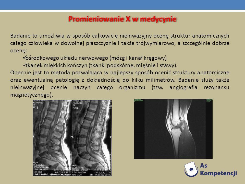 Promieniowanie X w medycynie Badanie to umożliwia w sposób całkowicie nieinwazyjny ocenę struktur anatomicznych całego człowieka w dowolnej płaszczyźn