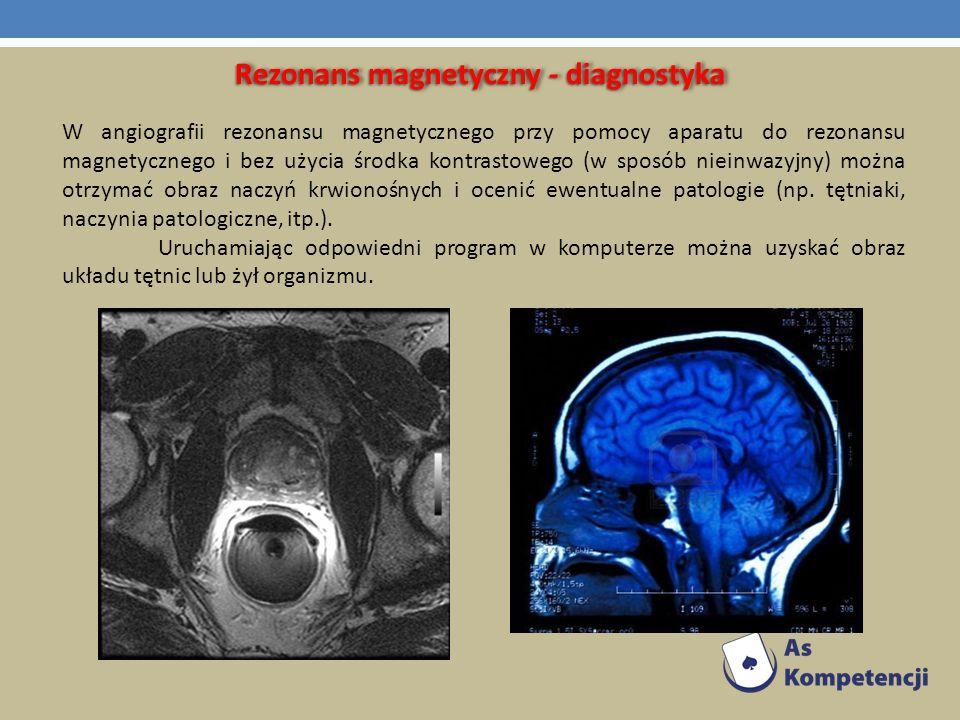 Rezonans magnetyczny - diagnostyka W angiografii rezonansu magnetycznego przy pomocy aparatu do rezonansu magnetycznego i bez użycia środka kontrastow