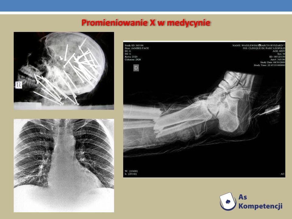 Promieniowanie X w medycynie