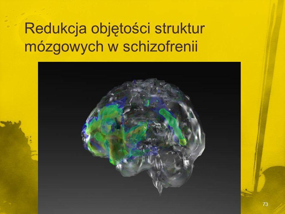 Struktury mózgu Struktury mózgu Powiększenie komór Powiększenie komór 20-25% pacjentów ze schizofrenią 20-25% pacjentów ze schizofrenią Więcej objawów