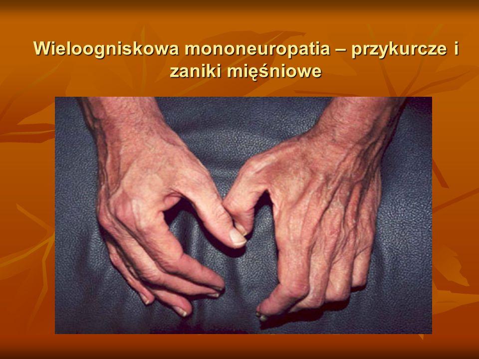 Wieloogniskowa mononeuropatia – przykurcze i zaniki mięśniowe