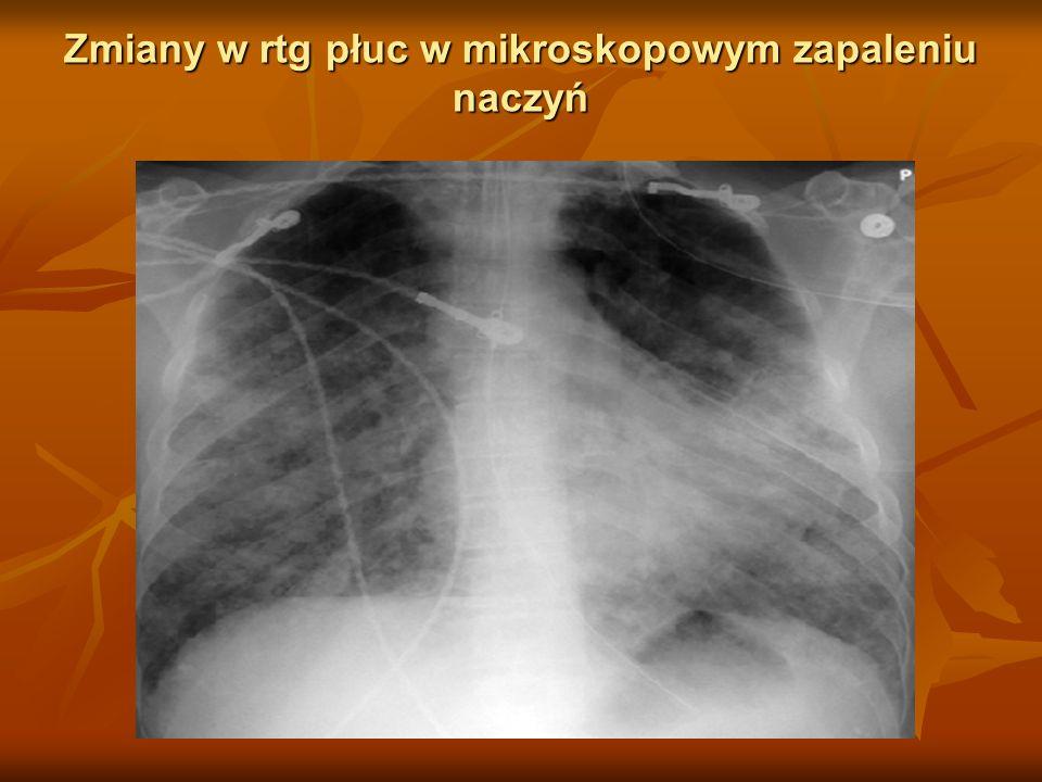 Zmiany w rtg płuc w mikroskopowym zapaleniu naczyń