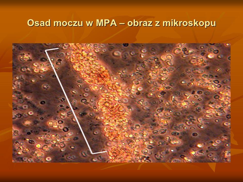 Osad moczu w MPA – obraz z mikroskopu