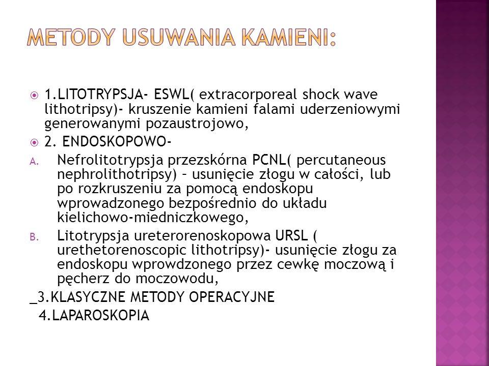 1.LITOTRYPSJA- ESWL( extracorporeal shock wave lithotripsy)- kruszenie kamieni falami uderzeniowymi generowanymi pozaustrojowo, 2. ENDOSKOPOWO- A. Nef