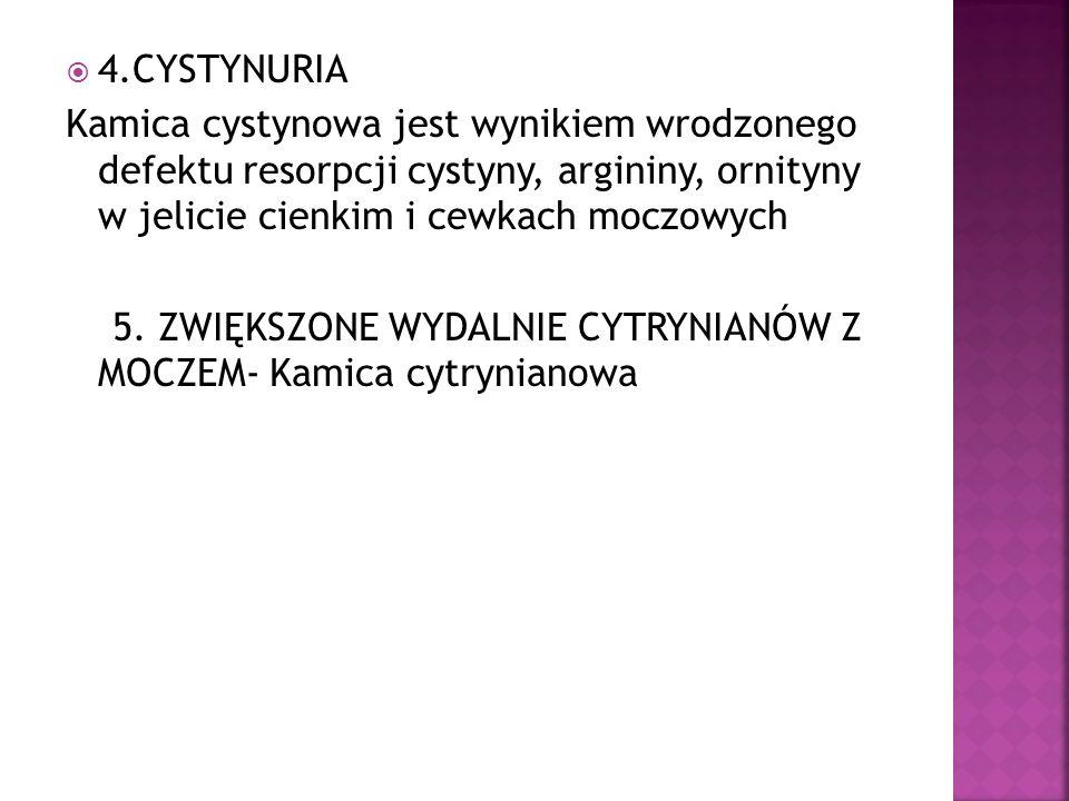 4.CYSTYNURIA Kamica cystynowa jest wynikiem wrodzonego defektu resorpcji cystyny, argininy, ornityny w jelicie cienkim i cewkach moczowych 5. ZWIĘKSZO