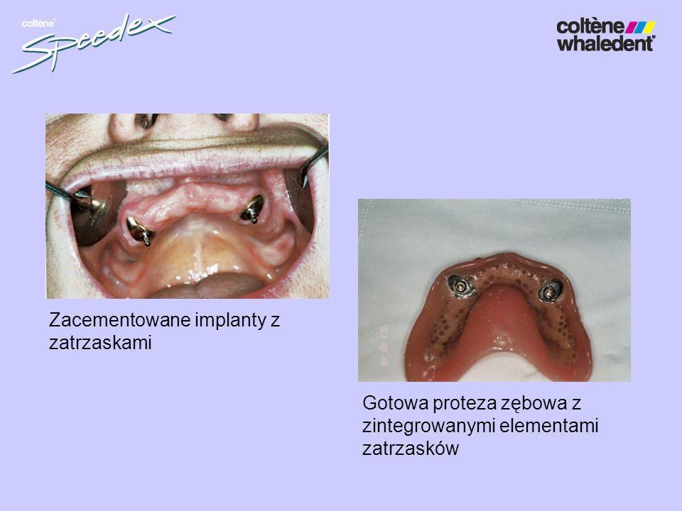 Zacementowane implanty z zatrzaskami Gotowa proteza zębowa z zintegrowanymi elementami zatrzasków