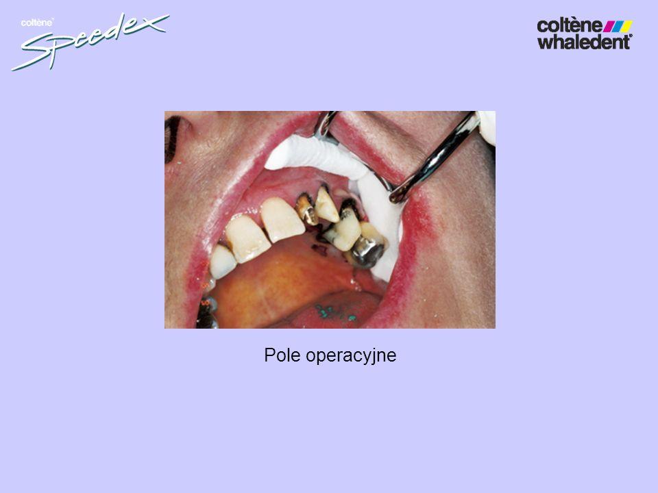 Proteza zębowa z zatrzaskami (Minigerber anchors) masą Speedex light i medium body