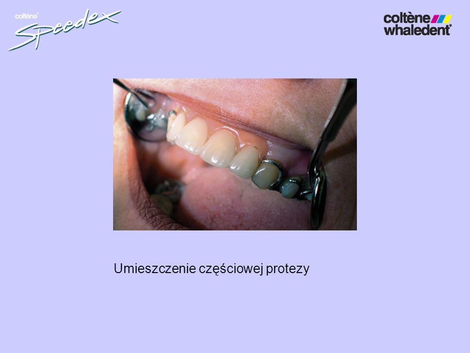 Umieszczenie częściowej protezy