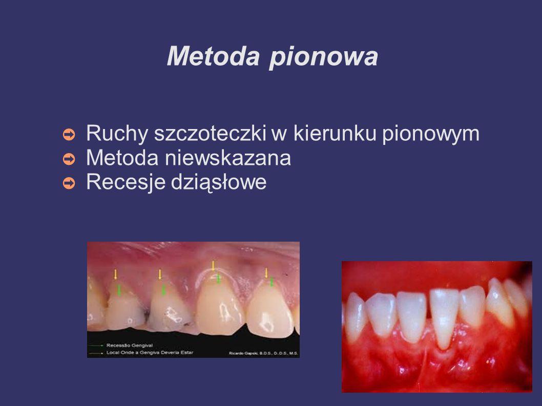 Metoda pozioma Poziome ruchy szczoteczki Metoda niewskazana Niedostateczne oczyszczanie oklolicy szyjki zęba