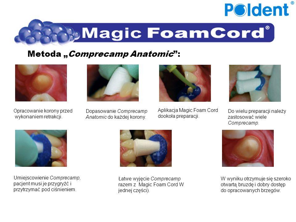 Metoda Comprecamp Anatomic: Opracowanie korony przed wykonaniem retrakcji. Dopasowanie Comprecamp Anatomic do każdej korony. Aplikacja Magic Foam Cord