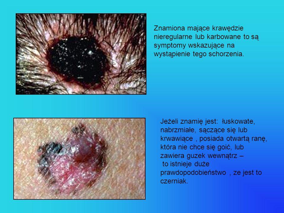 Znamiona mające krawędzie nieregularne lub karbowane to są symptomy wskazujące na wystąpienie tego schorzenia. Jeżeli znamię jest: łuskowate, nabrzmia