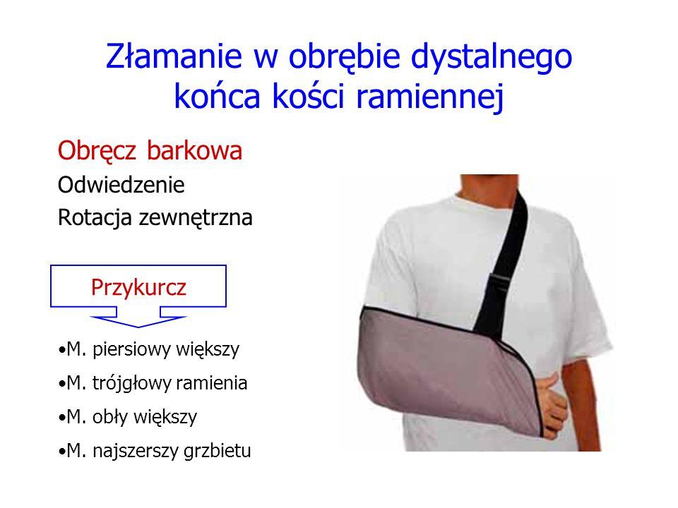 Złamanie w obrębie dystalnego końca kości ramiennej Obręcz barkowa Odwiedzenie Rotacja zewnętrzna Przykurcz M. piersiowy większy M. trójgłowy ramienia