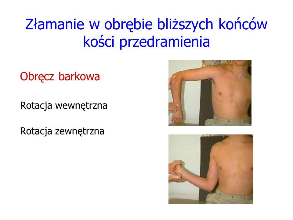 Złamanie w obrębie bliższych końców kości przedramienia Obręcz barkowa Rotacja wewnętrzna Rotacja zewnętrzna