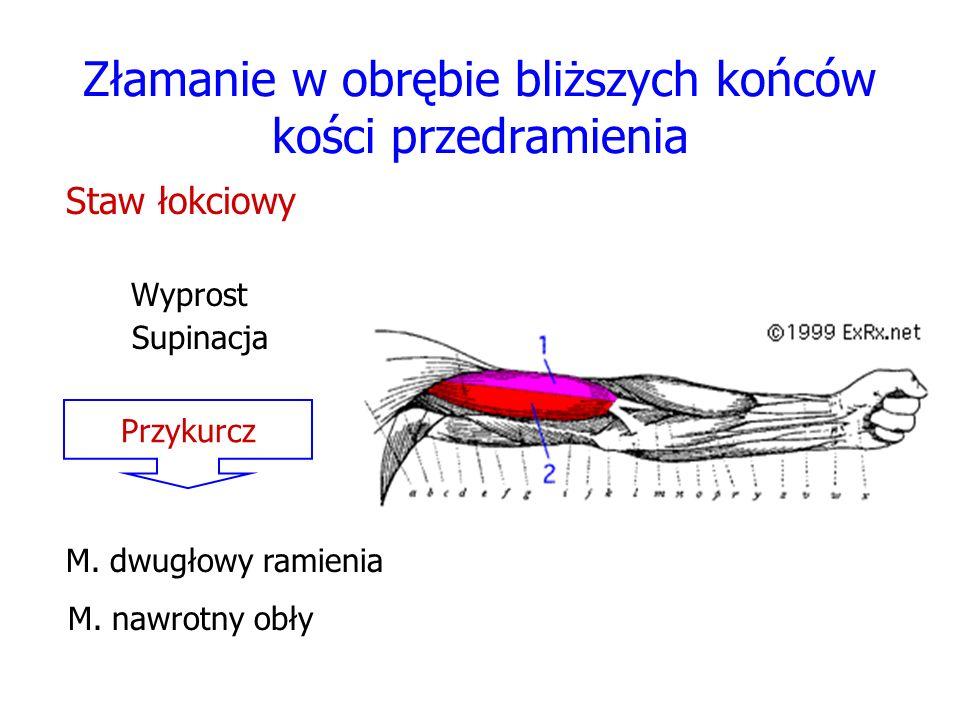Złamanie w obrębie bliższych końców kości przedramienia Staw łokciowy Wyprost Supinacja Przykurcz M. dwugłowy ramienia M. nawrotny obły