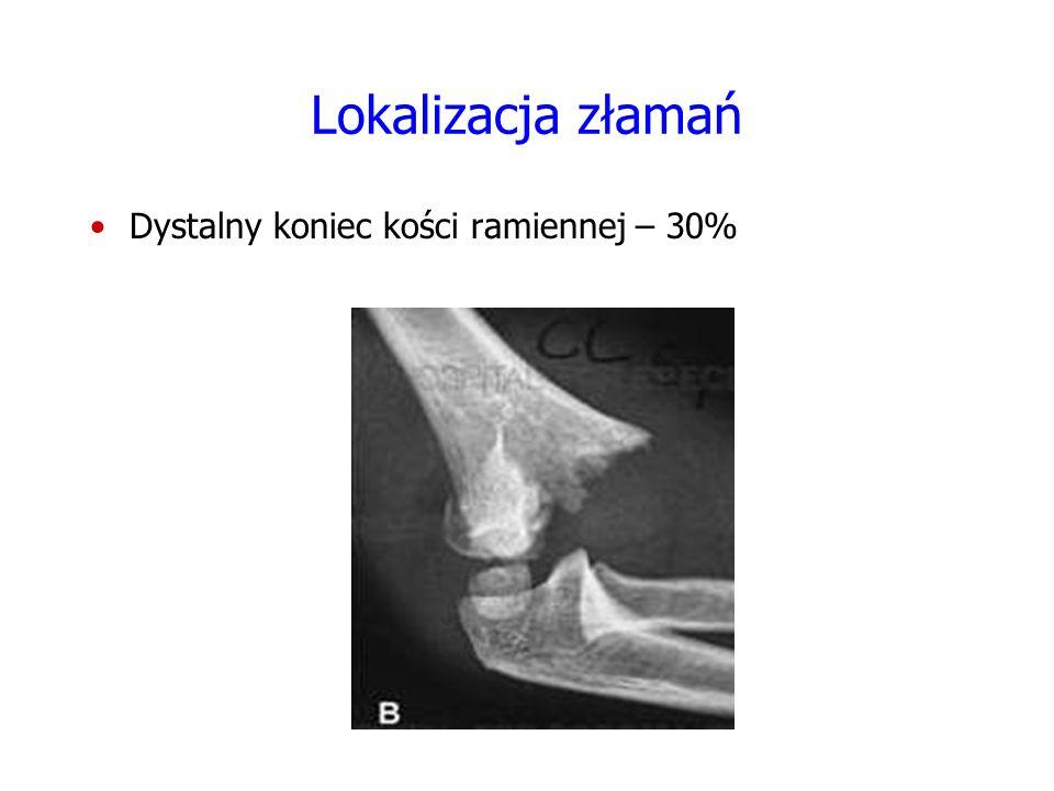 Złamanie w obrębie dystalnego końca kości ramiennej Obręcz barkowa Odwiedzenie Rotacja zewnętrzna Przykurcz M.