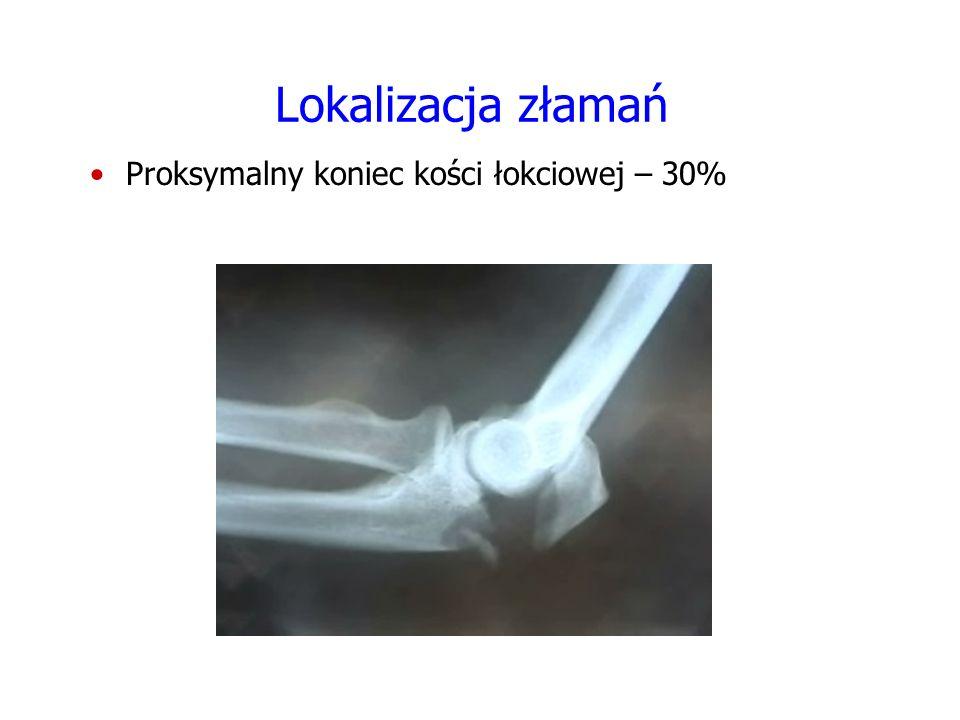 Lokalizacja złamań Proksymalny koniec kości promieniowej – 25% FOTO
