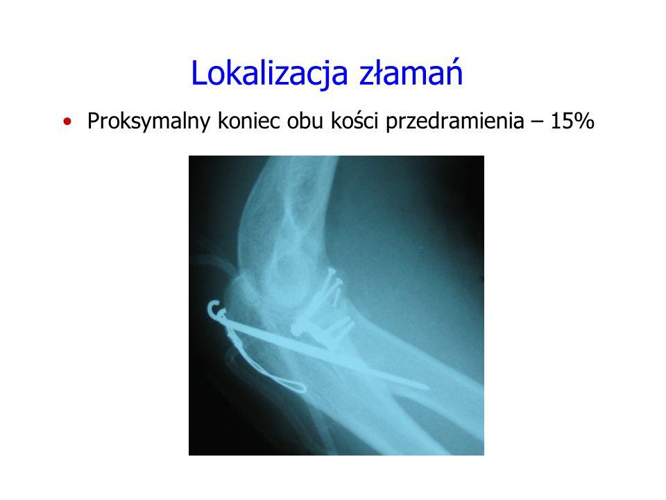 Lokalizacja złamań Proksymalny koniec obu kości przedramienia – 15% FOTO