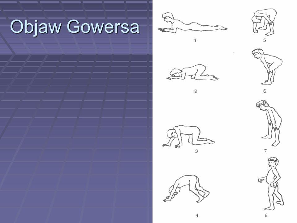 Objaw Gowersa