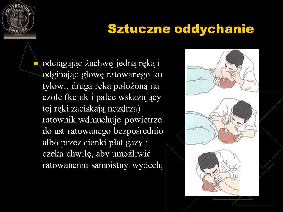 Sztuczne oddychanie odciągając żuchwę jedną ręką i odginając głowę ratowanego ku tyłowi, drugą ręką położoną na czole (kciuk i palec wskazujący tej rę
