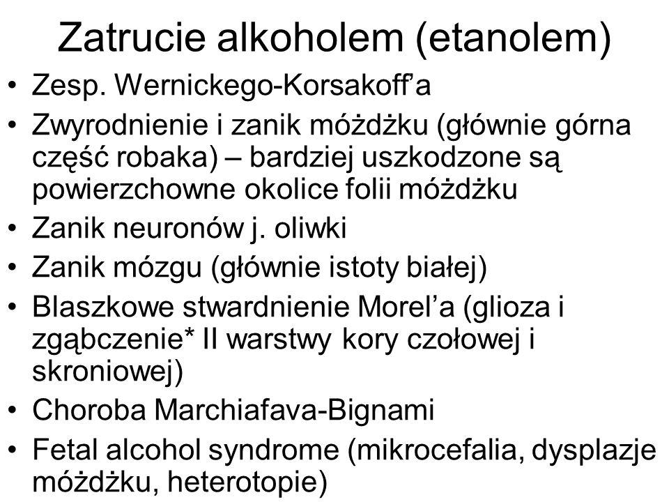 Zatrucie alkoholem (etanolem) Zesp. Wernickego-Korsakoffa Zwyrodnienie i zanik móżdżku (głównie górna część robaka) – bardziej uszkodzone są powierzch