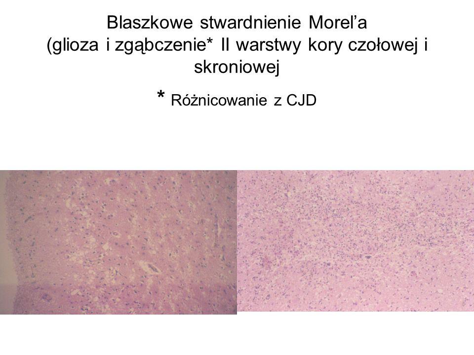 Blaszkowe stwardnienie Morela (glioza i zgąbczenie* II warstwy kory czołowej i skroniowej * Różnicowanie z CJD