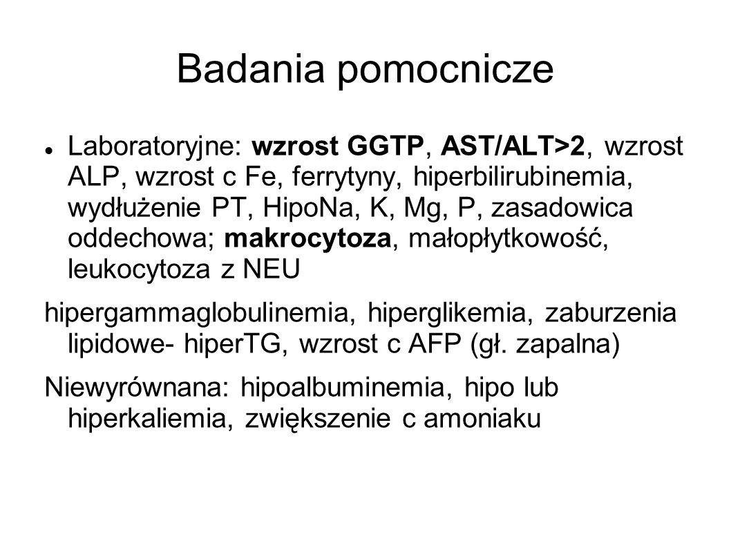 Badania pomocnicze Laboratoryjne: wzrost GGTP, AST/ALT>2, wzrost ALP, wzrost c Fe, ferrytyny, hiperbilirubinemia, wydłużenie PT, HipoNa, K, Mg, P, zas