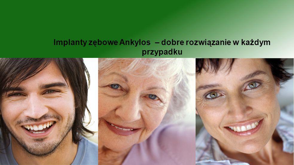 Implanty zębowe Ankylos – dobre rozwiązanie w każdym przypadku