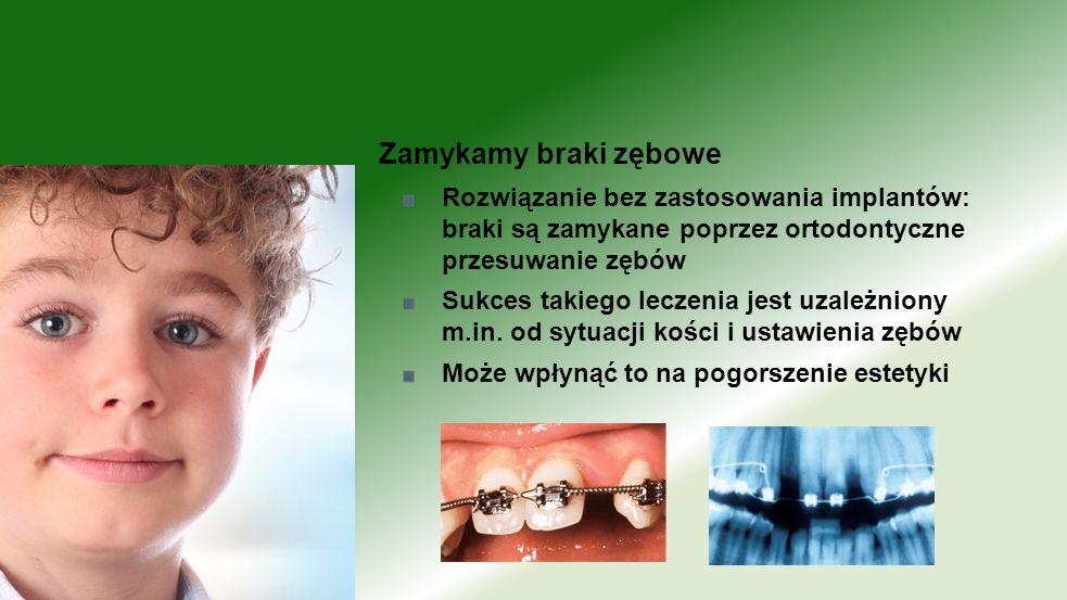 Rozwiązanie bez zastosowania implantów: braki są zamykane poprzez ortodontyczne przesuwanie zębów Sukces takiego leczenia jest uzależniony m.in. od sy