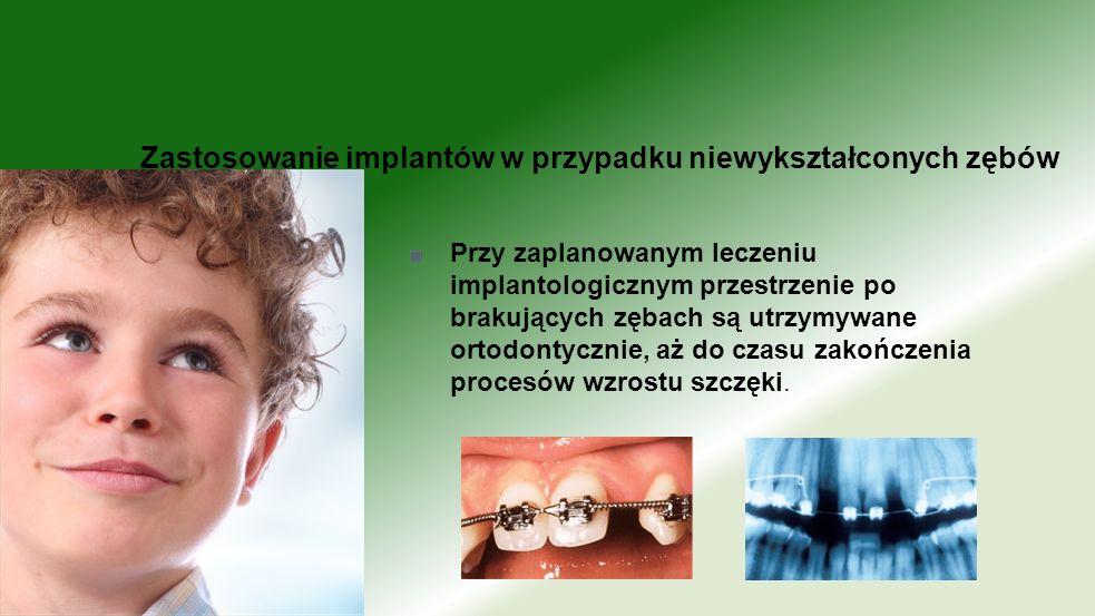 Przy zaplanowanym leczeniu implantologicznym przestrzenie po brakujących zębach są utrzymywane ortodontycznie, aż do czasu zakończenia procesów wzrost
