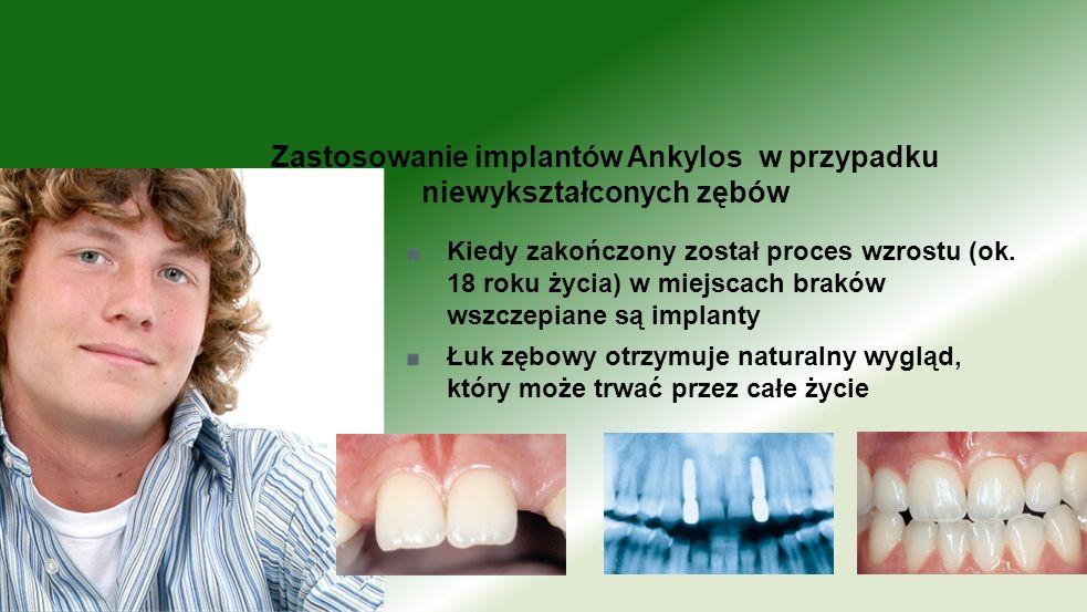 Kiedy zakończony został proces wzrostu (ok. 18 roku życia) w miejscach braków wszczepiane są implanty Łuk zębowy otrzymuje naturalny wygląd, który moż