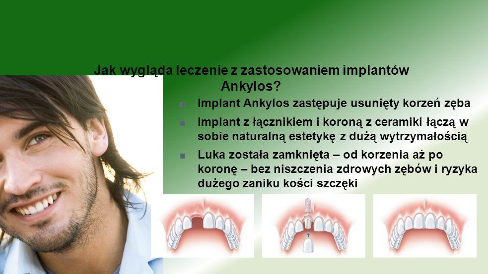 Implant Ankylos zastępuje usunięty korzeń zęba Implant z łącznikiem i koroną z ceramiki łączą w sobie naturalną estetykę z dużą wytrzymałością Luka zo